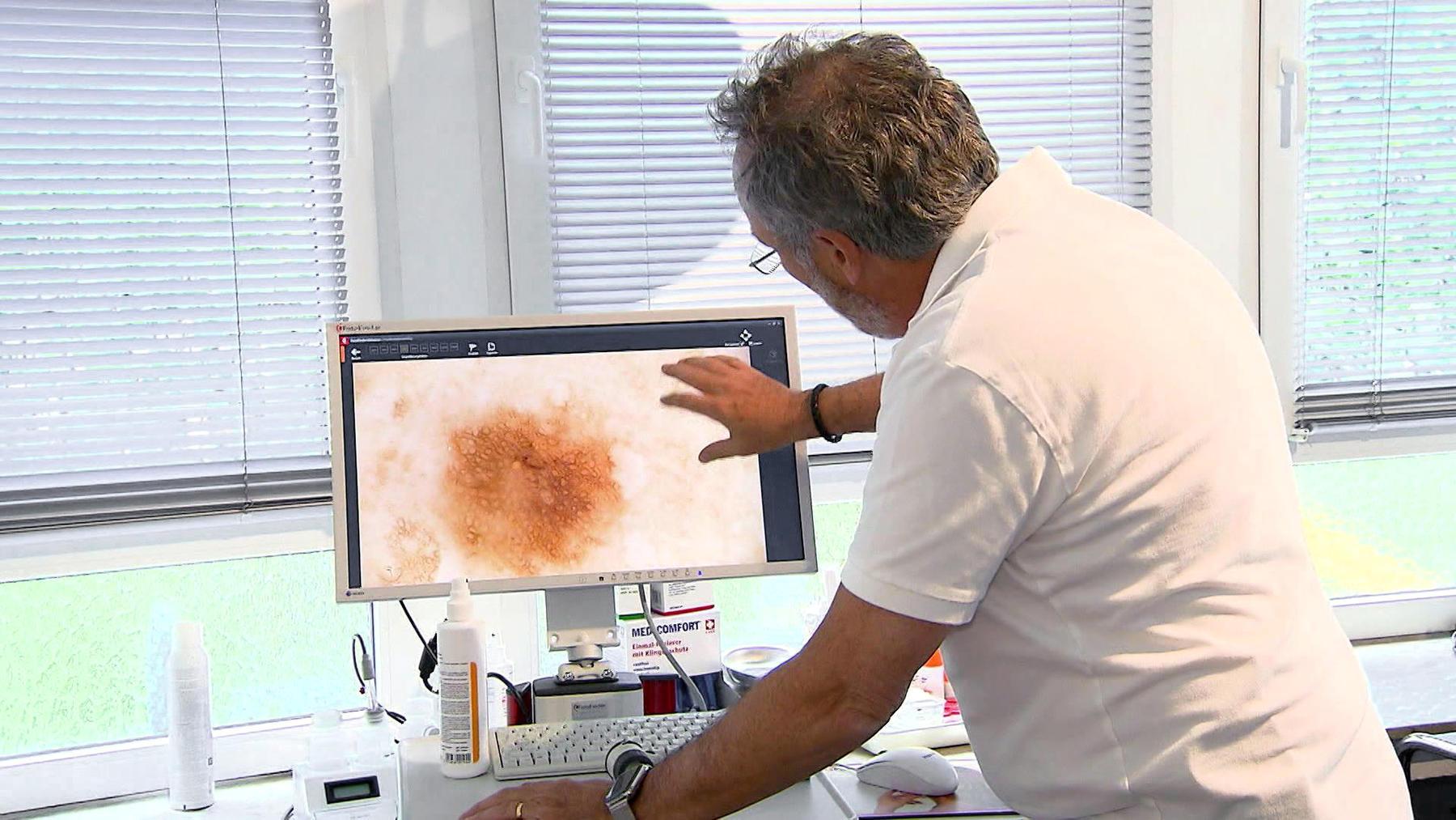 Hautarzt Dr. Hans-Georg Dauer aus Köln | Folge 2