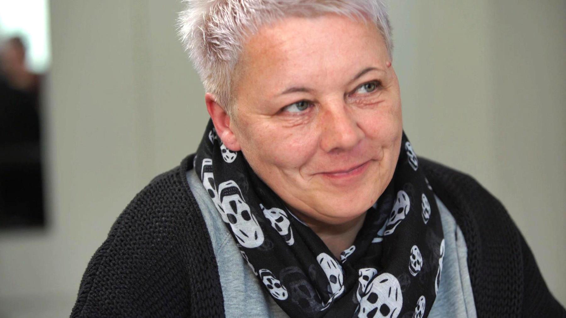 Corinna, Oberhausen - Warzenentfernung durch Lasermethode - Dr. Afschin Fatemi